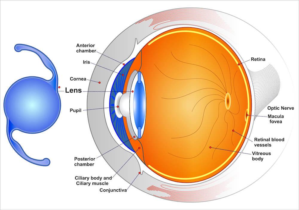 Diagram of conventional interocular lens